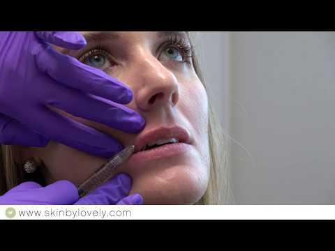 Juvederm Volbella -- Lip Enhancement Demo -- Skin by Lovely