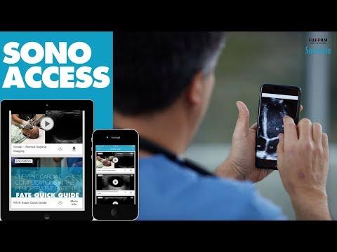 SonoAccess: Free Ultrasound Education App