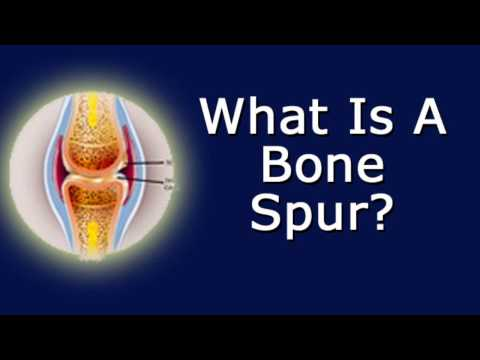 What's A Bone Spur?