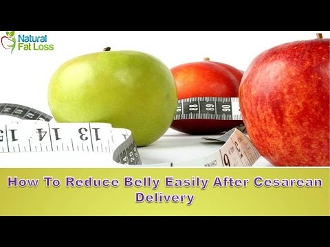 How To Reduce Belly Easily After Cesarean Delivery