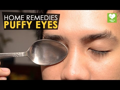 Puffy Eyes - Home Remedies | Health Tone Tips