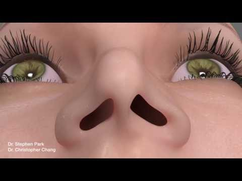 Pinched Narrow Nose Rhinoplasty to Address Nasal Obstruction