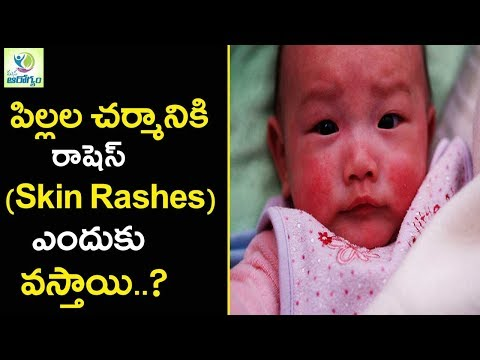 Causes and Natural  Cures for SKIN RASH in CHILDREN - Mana Arogyam Telugu Health Tips