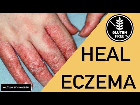 How to Heal Eczema - Going Gluten Free