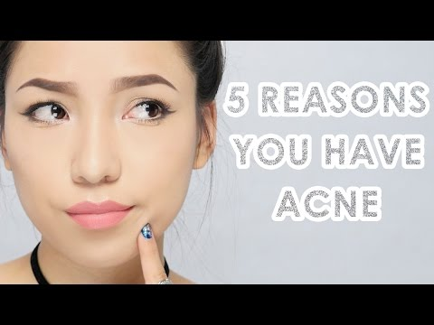 5 Reasons You have Acne & How To Get Rid Of Them