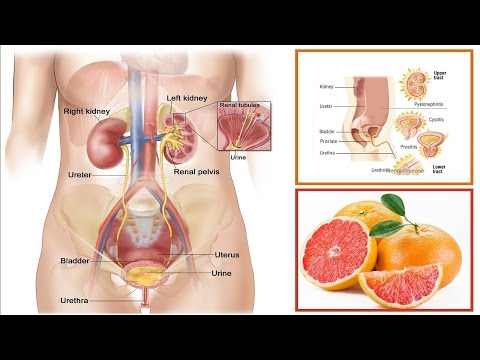 How To Treat A Urinary Tract Infection Naturally.