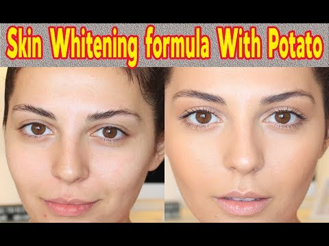 6 AMAZING BEAUTY HACK WITH POTATO!! SKIN CARE AND WHITENING FORMULA WITH POTATO!!