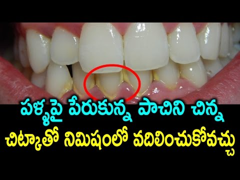 How to Remove Tartar and Plaque from Teeth at Home Naturally | Health Tips in Telugu