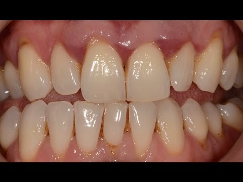 Treatment of Advanced Periodontal (Gum) Disease with Non surgical and Surgical Periodontal Therapy.