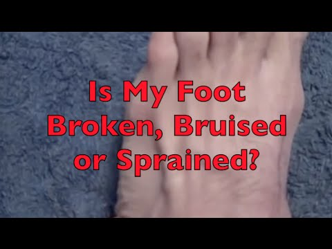 Is My Foot Pain A Fracture Or just Sprained?