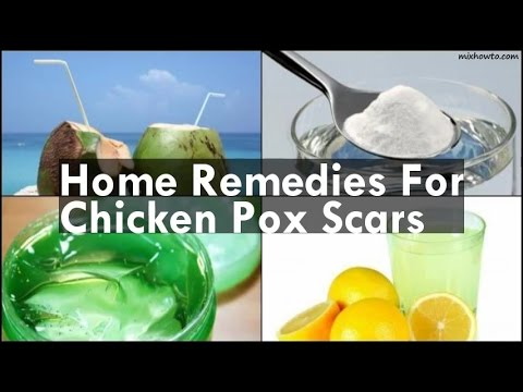 Home Remedies For Chicken Pox Scars
