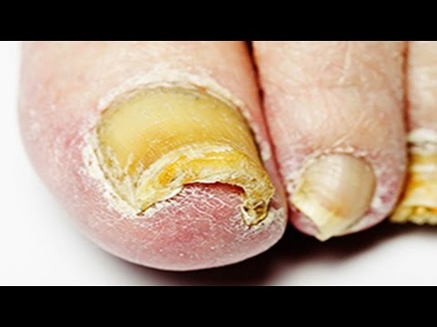 Nail Fungus Treatment - Home Remedy for Nail Fungus That Actually Works