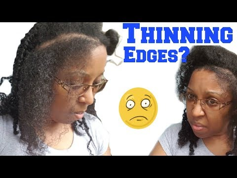 How to Hairstyle for Thinning Edges   Double Twist with Bantu Knot for Natural Kinky Curls   Type 4