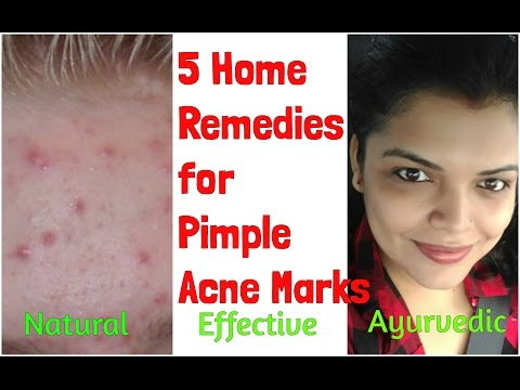 PIMPLE MARKS/SCARS REMOVAL at HOME NATURALLY, HOME REMEDY for ACNE MARKS TIPS TREATMENT in HINDI