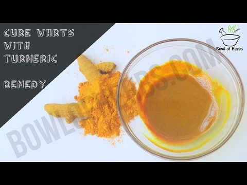 How to get rid of warts with turmeric - Home beauty remedy