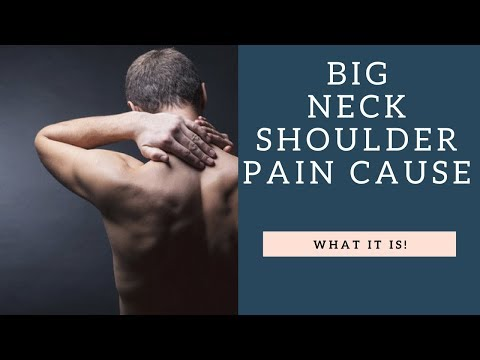 Tightness In This Muscle Causes GREAT Neck Pain and Shoulder Pain | How To Stretch It!