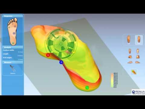 Diabetic Orthotics Fitting Process