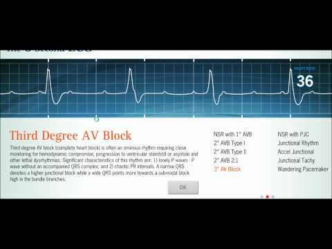 Easy EKG: Interpreting Rhythms