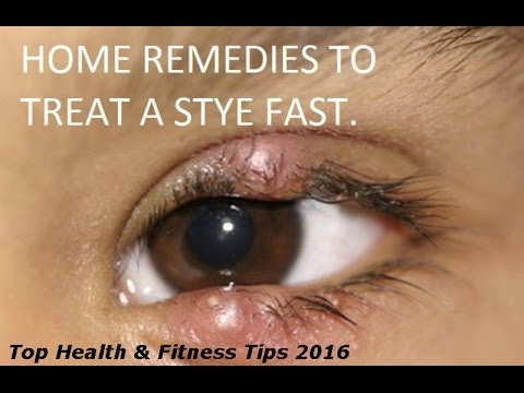 How to get rid of stye on your eyelid fast overnight 2016