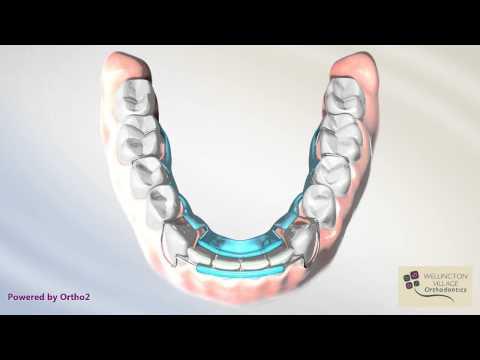 Lower Spring Aligner Resetting Lower Anterior Teeth - Wellington Village Orthodontics