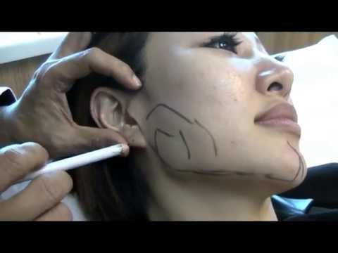 V shaped face singapore 103
