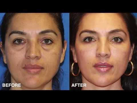 Eye Rejuvenation in San Diego - Eyelid Surgery