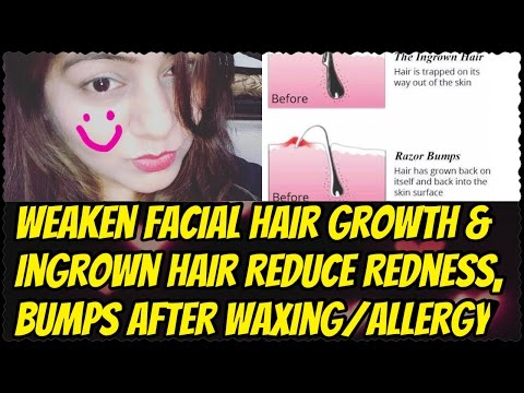 Home Remedy for Ingrown Hair, Pimples, Redness after Waxing | Weaken Facial Hair Growth Naturally