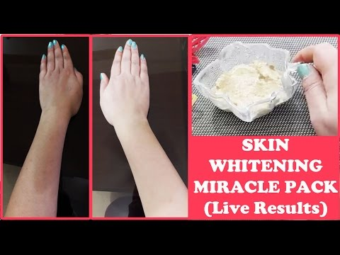 Skin whitening miracle pack | Live Results | get fair skin, glowing skin instantly | Pooja Luthra