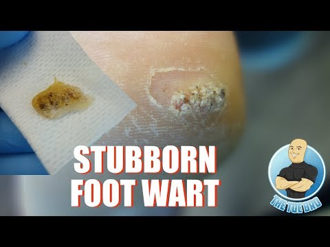 HOW TO TREAT DIFFICULT PLANTAR WARTS - FOOT HEALTH MONTH 2018 #9