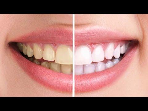 Photoshop CC : Whiten Teeth Very Quick Tip