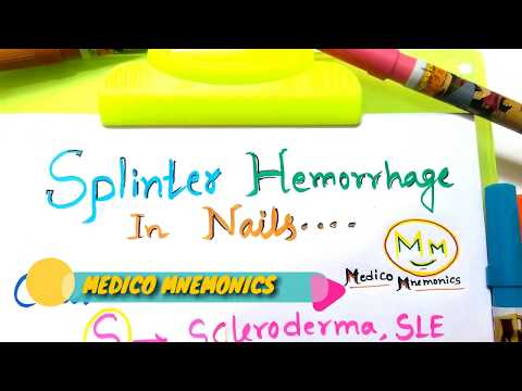Mnemonic For Causes of Splinter fingernail,Splinter Hemorrhages, For NEET-PG,USMLE Step 1 Prep