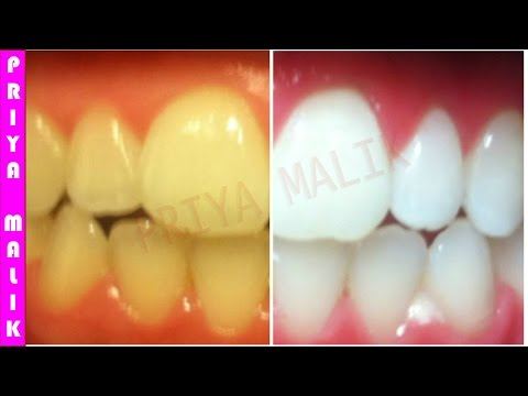 Teeth Whitening At Home In 3 Minutes || How To Whiten Your Yellow Teeth Naturally || 100% Effective