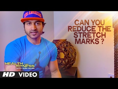 Can you reduce the Stretch Marks? | Health and Fitness Tips | Guru Mann