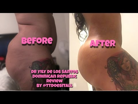 Q&A/PICS | Yily De Los Santos | BBL| Serenity 2 Recovery House BY @TTDoesitAll