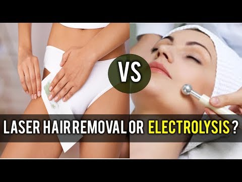 Laser hair removal and electrolysis |  Which is best ?