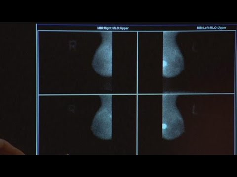 New at-home genetics test helps check for breast cancer genes
