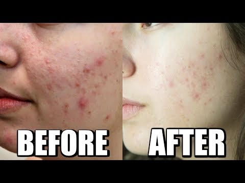 ACNE CHEMICAL PEEL BEFORE AND AFTER, 1 TREATMENT JOURNEY TO CLEAR SKIN