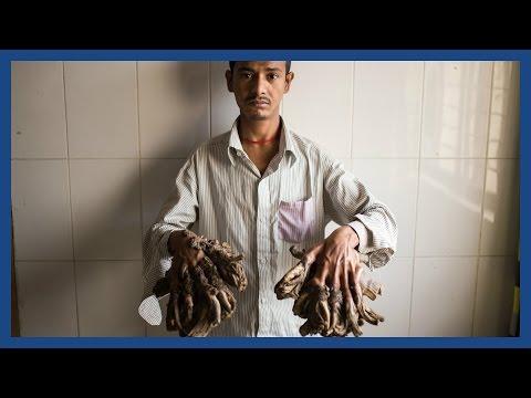 Xxx Mp4 39 Tree Man' Abul Bajandar Set For Life Changing Surgery In Bangladesh 3gp Sex