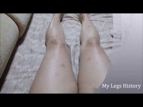 My Legs journey to Flawless Skin - The Story Begins Here!