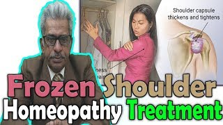 Frozen Shoulder - Causes, Symptoms and Treatment in Homeopathy by Dr. P.S Tiwari