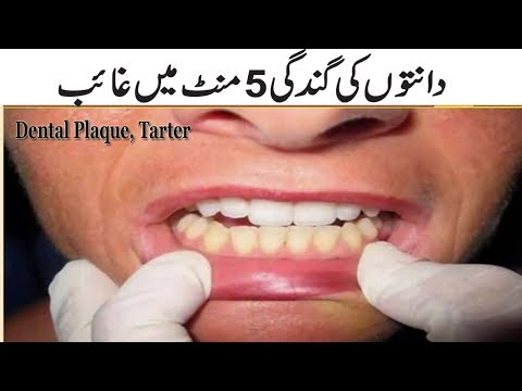 Dental Plaque, Tarter Homemade Treatment In Just 5 Minutes | Teeth Whitening Tips In Urdu Hindi