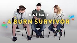 Kids Meet a Burn Survivor   Kids Meet   HiHo Kids