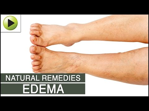 Edema - Natural Ayurvedic Home Remedies