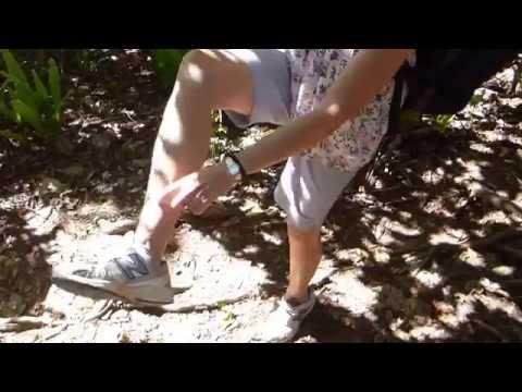 Snake Goes up Karen's Leg - True - at Daydream Island, Whitsundays Qld