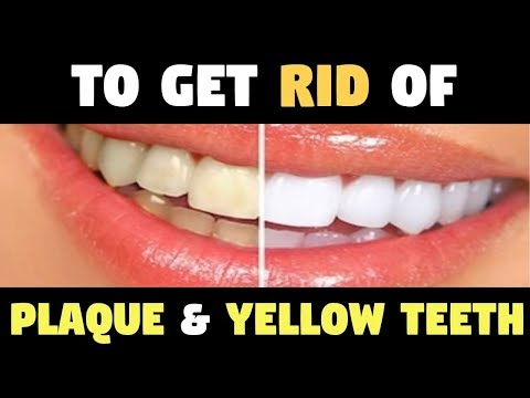 Whiten Your Extremely Yellow Teeth and Get Rid Of That Nasty Tartar Buildup and Plaque With This!