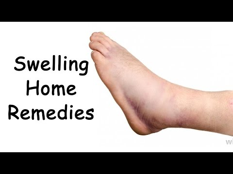 Edema Treatment With 3 Easy Natural Remedies By Sachin Goyal @ ekunji.com