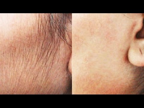 Remove Hair Permanently At Home_ Natural DIY _ (Face & Upper Lip) _  SuperWowStyle