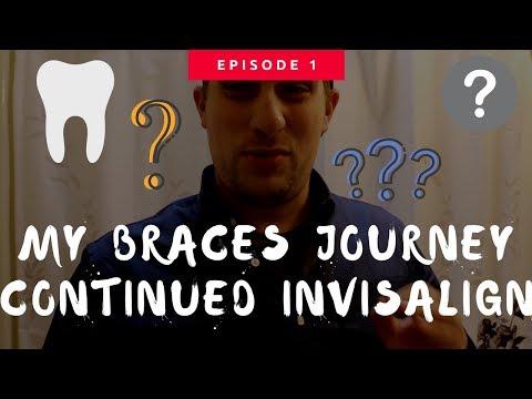 Announcement: I got Invisalign Braces...again?!?!