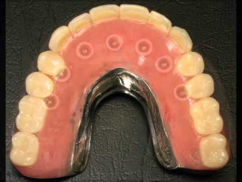 Implant Denture Charlotte NC