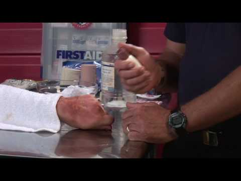 First Aid Tips : How to Treat Poison Oak, Ivy & Sumac